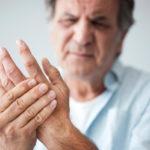 An Overview of Hand Arthritis
