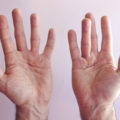 Dupuytren's Contracture - orthopedic surgery - hand pain