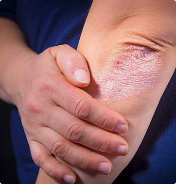 Vanguard Skin Specialists - psoriasis - what is psoriasis
