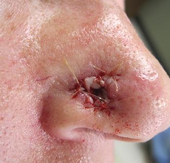Mohs Patient 4c. Repair