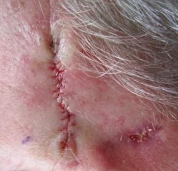 Mohs Patient 1c. Repair