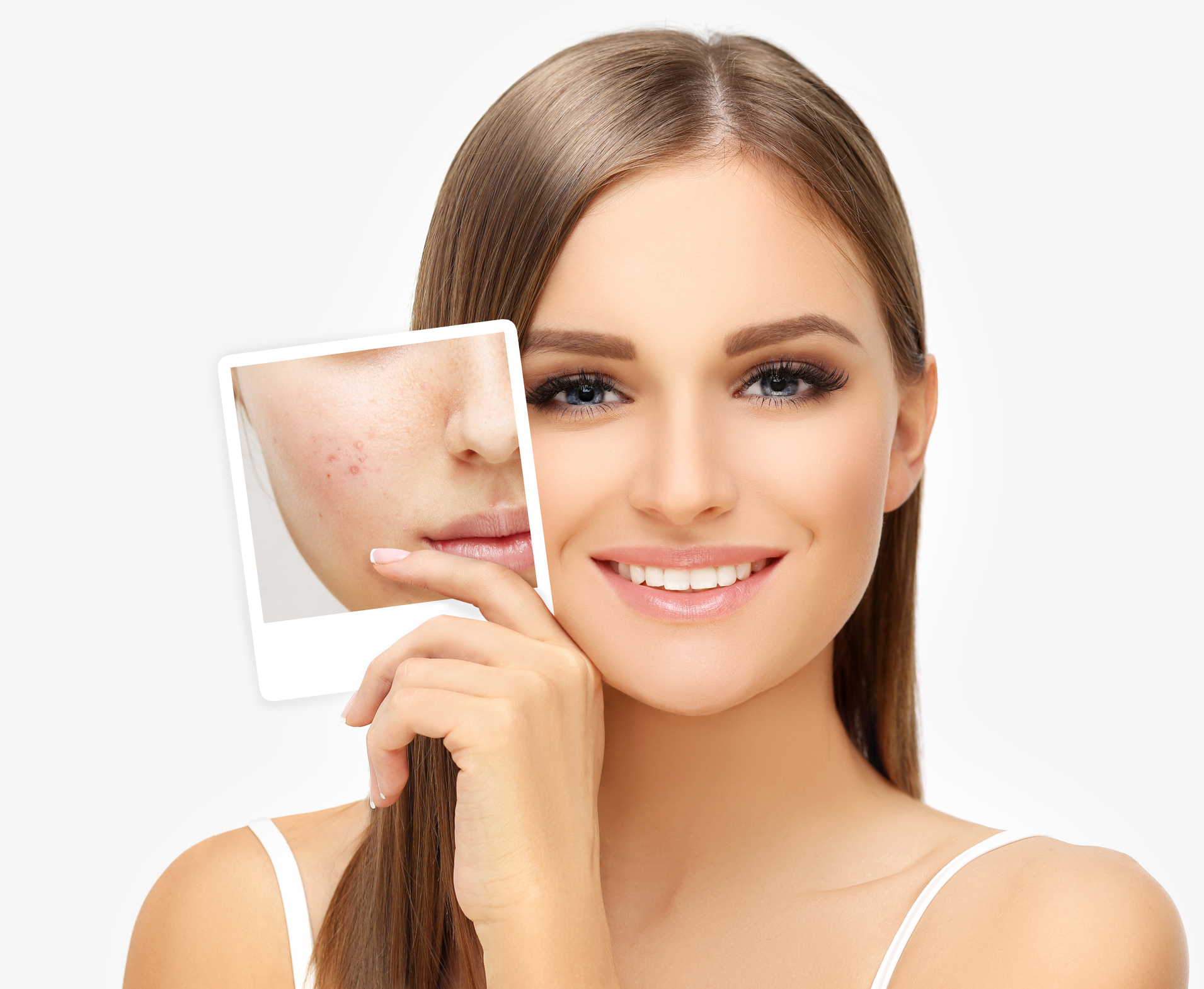 Acne When Is It Time To See A Dermatologist Vanguard Skin
