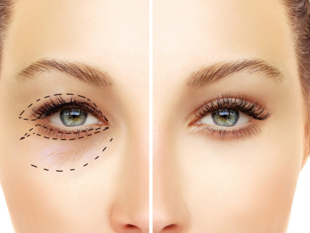 The Power of Eyelid Surgery
