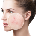 Products for Patients with Acne