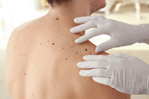 dermatologist checking patient for skin cancer