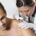 melanoma treatment near me