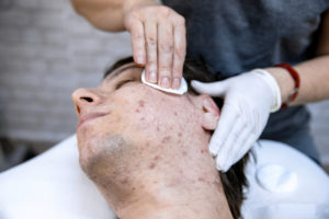 Doctor treating man with acne