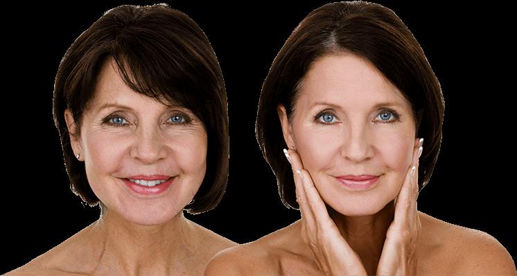 Laser Facial Treatments   Broadband Light   Santa Ana Skin
