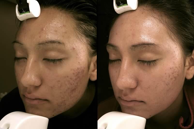 Laser Genesis Santa Ana Skin Care