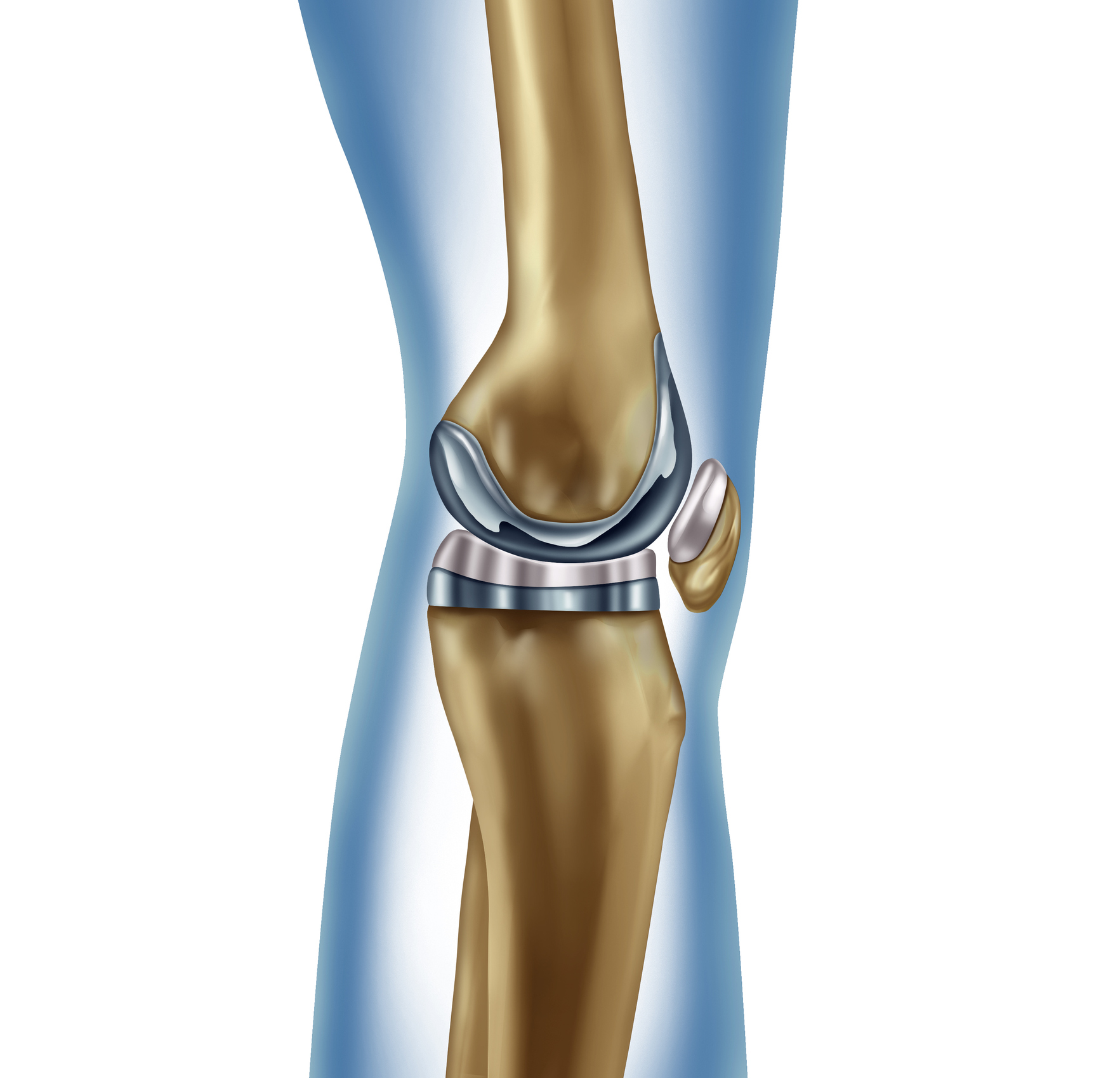 Do I Need a Full or Partial Knee Replacement Surgery