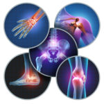 osteoporosis - North Country Orthopaedic Group