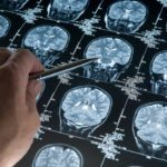 Early Alzheimer's Detection With Digital Imaging