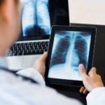 Digital X-Rays and False Positives