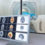 What is Magnetic Resonance Imaging (MRI)?