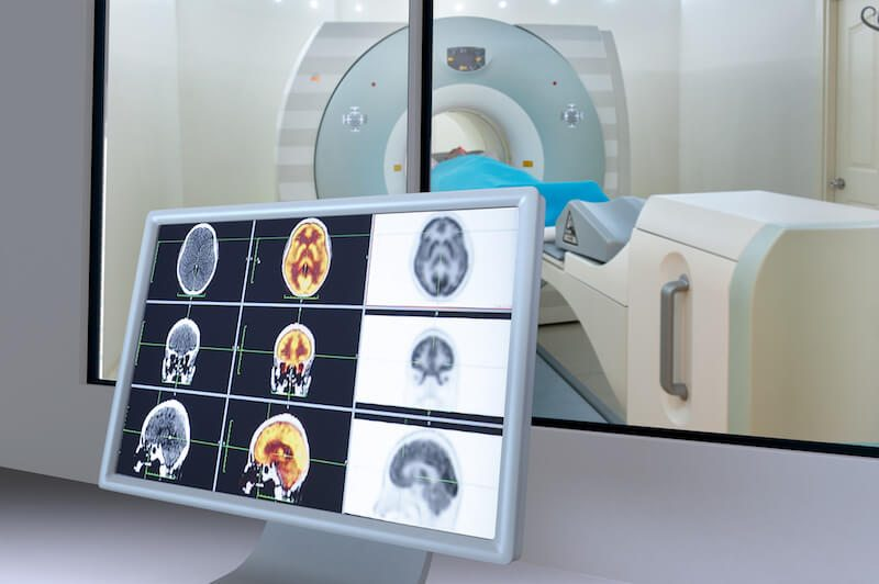 What is Magnetic Resonance Imaging (MRI)? | Independent Imaging