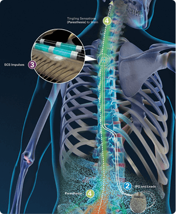 Spinal Cord Stimulation - Chronic Pain - Chicagoland Pain Management
