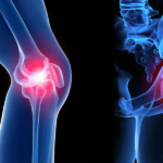 Intra-articular Bone Marrow Concentrate injection with 8 week PRP injection Protocol for Osteoarthritis: Results