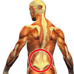 Can IROM Help With Back Pain?
