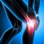 Earlier Detection of Osteoarthritis May Lead to Better Treatment Outcomes