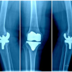 Joint Reconstruction Surgery - orthopedics - orthopedic surgeon