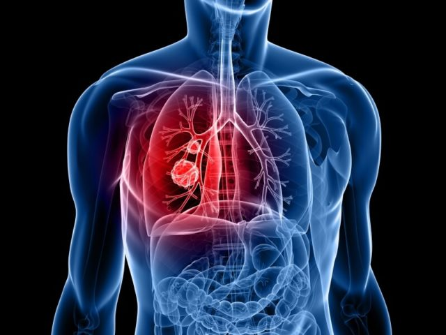 Undiagnosed Lung Disease