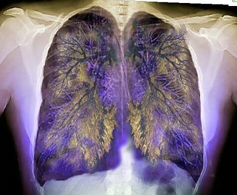 Changing Seasons and Allergic Asthma
