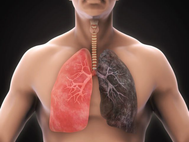 The Different Types of COPD