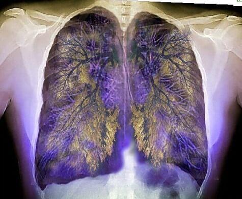 chest scan
