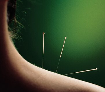 Acupuncture Treatments in Wyomissing, PA