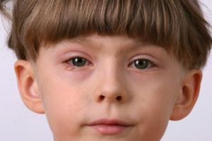 Pink Eye or Allergies - Tots 'N' Teens Pediatric Urgent Care
