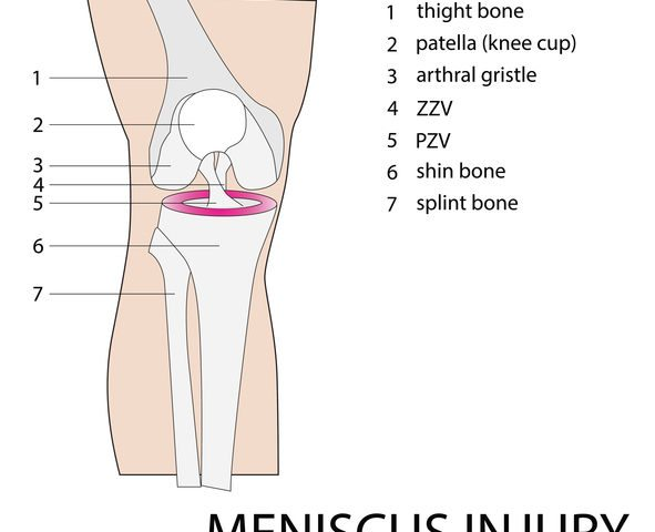 Surviving a Meniscus Injury