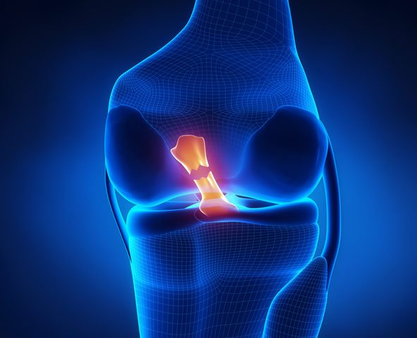 What is An ACL Tear, and How is It Treated?