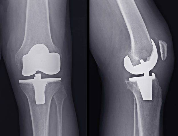 Double Knee Replacement
