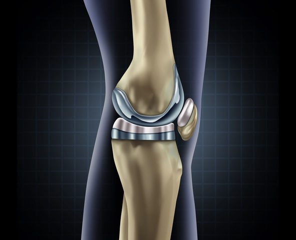 Are You a Candidate for Knee Replacement?