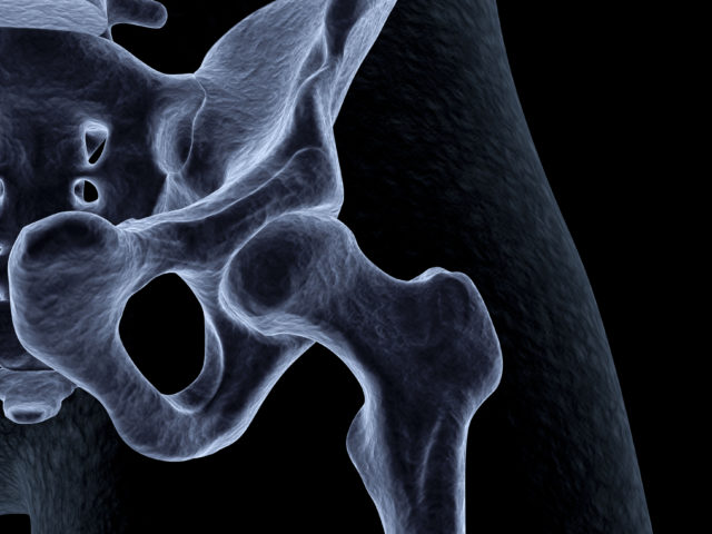Hip Impingement - Dr. William F. Hefley