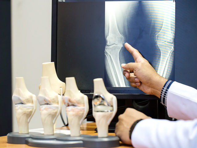 Orthopedic doctor pointing on the knee problem point