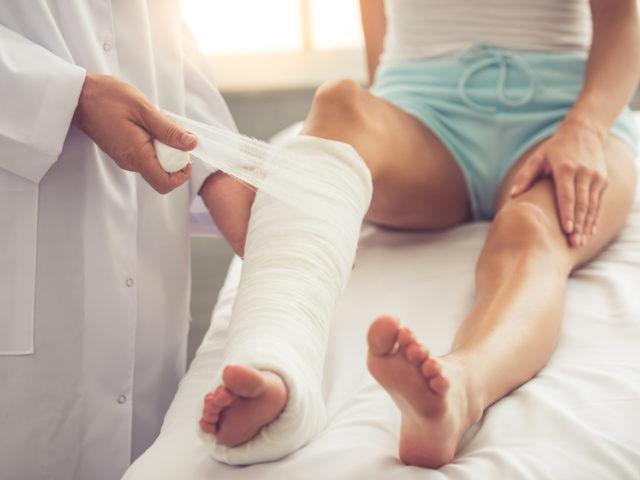 orthopedic doctor putting cast on woman's leg