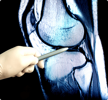 Regenerative Medicine - PRP therapy - Stem Cell Therapy - Midwest Orthopaedics