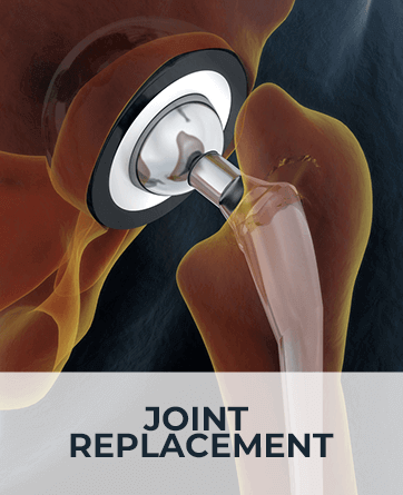 Joint Replacement Surgery - River Cities Bone and Joint Centre