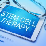 6 FAQ'S for Stem Cell Therapy