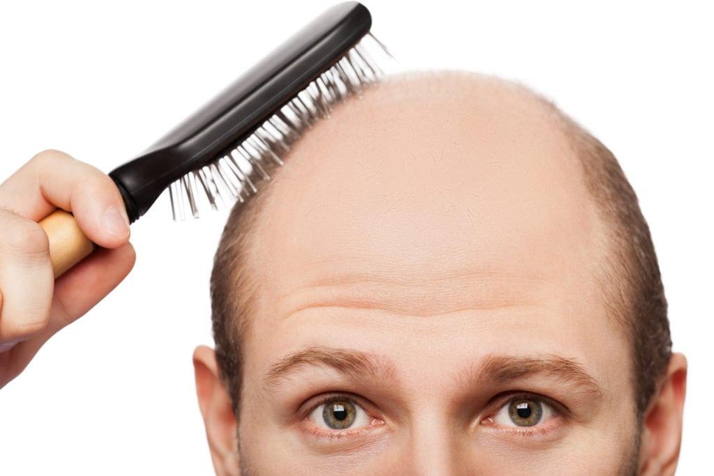 baldness - hair loss