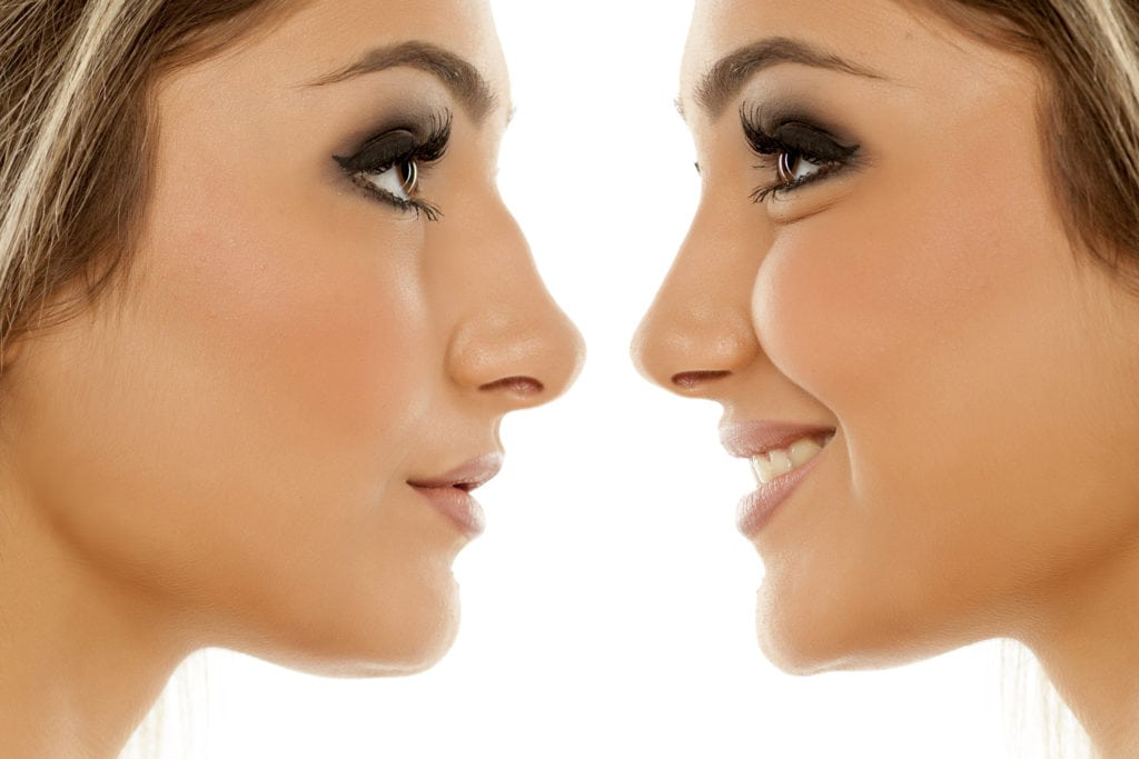 Image result for nose surgery,nari