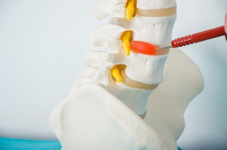 The Difference Between a Herniated Disc and a Bulging Disc