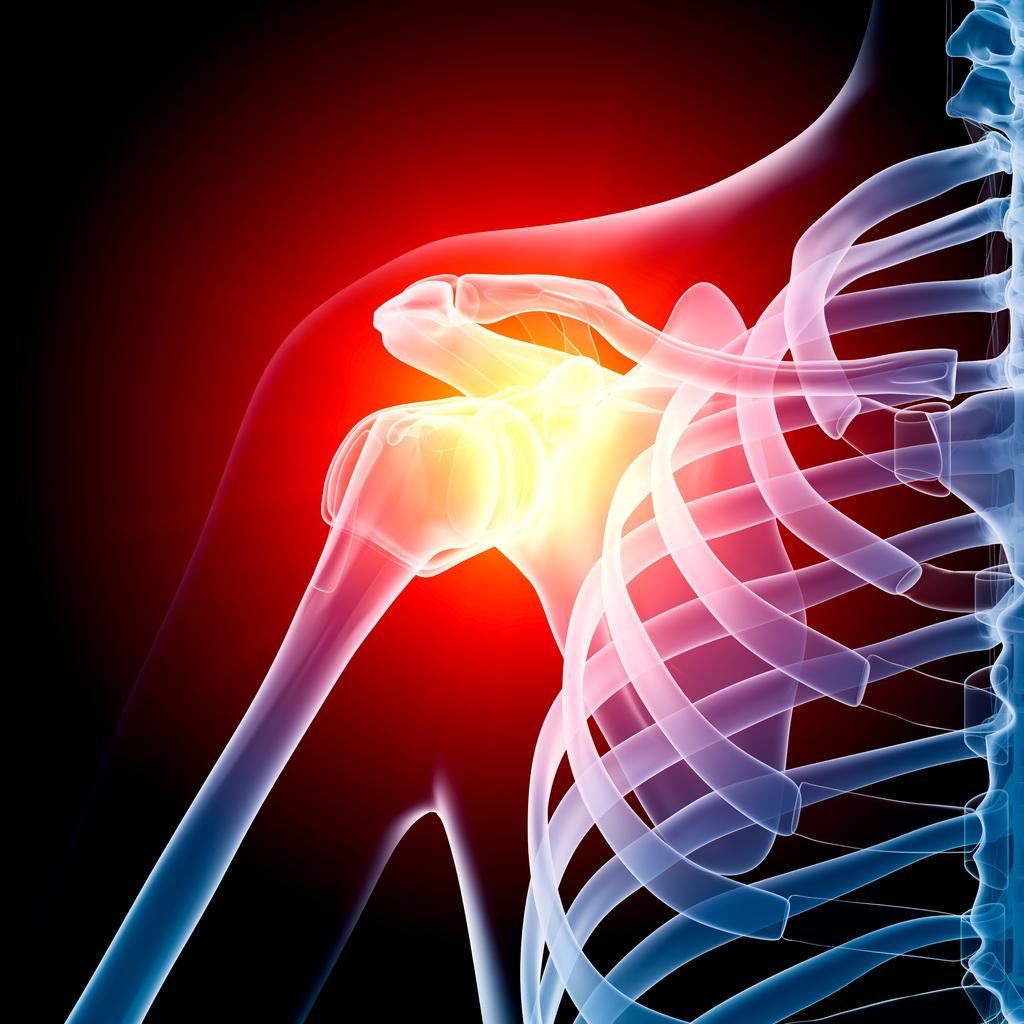 Shoulder Arthroscopic Repairs