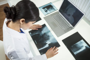 Hip Replacement Surgery - hip surgery