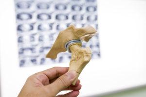 Degenerative arthritis