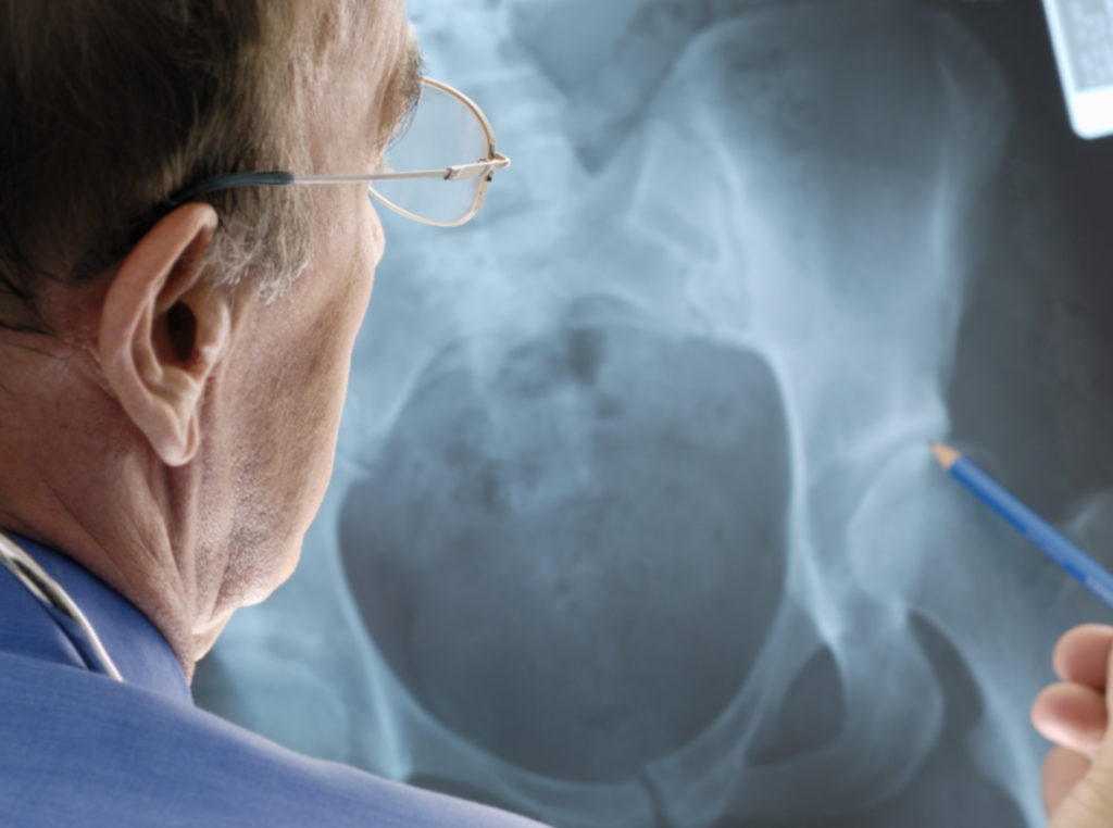 Orthopedic Doctor examining osteoporosis on an x-ray
