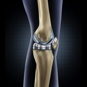 Knee revision surgery graphic