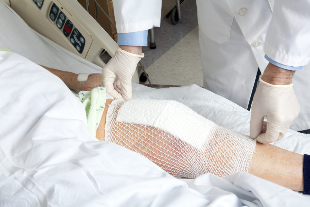 A patient getting their knee bandaged after a Knee Arthroplasty.