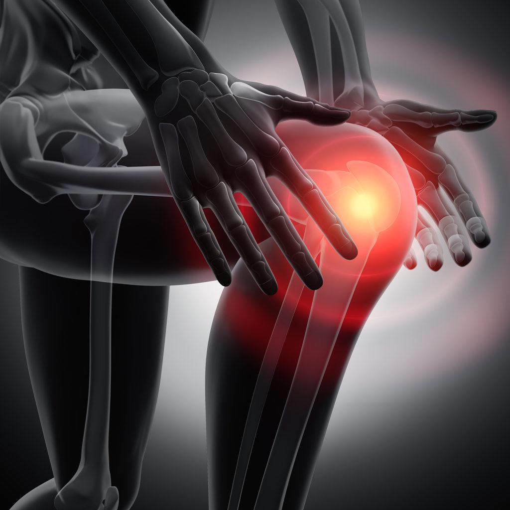 Image of knee pain